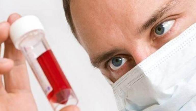 出現闌尾炎的這些症狀您可能是HIV攜帶者